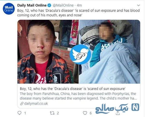 بیماری دراکولا