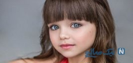 تصاویر از زیباترین دختربچه جهان با چشمانی خاص را ببینید