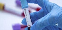 تفاوت های عجیب کرونا ویروس در ایران با سایر نقاط جهان