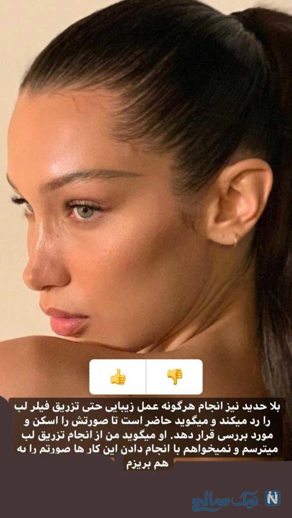 جراحی زیبایی سلبریتی ها ؛ سلبریتی هایی که به جراحی زیبایی اعتراف کردند