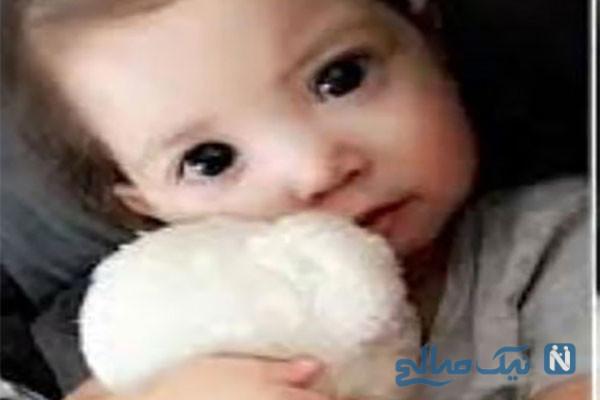 دختری که بخاطر بیماری خاص چشمانی زیبا پیدا کرده است