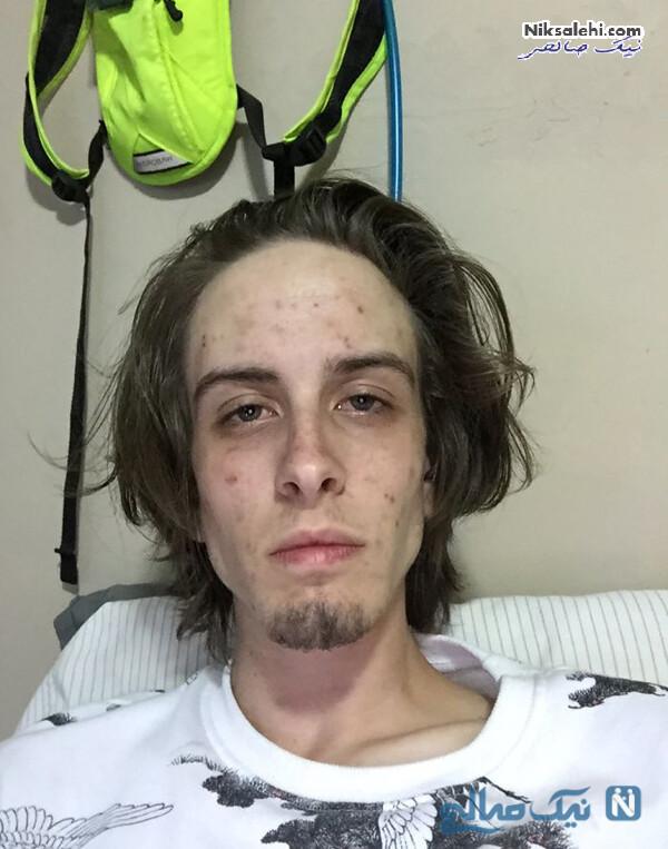 تغییر چهره بعد از ترک اعتیاد