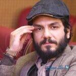 تغییر چهره عباس غزالی بعد از گریم برای سریال شاهرگ