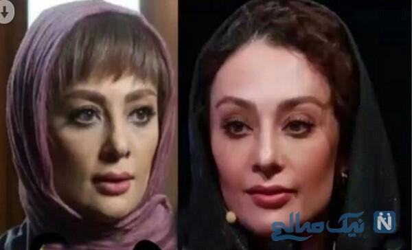 تغییر چهره ناگهانی خانم بازیگر