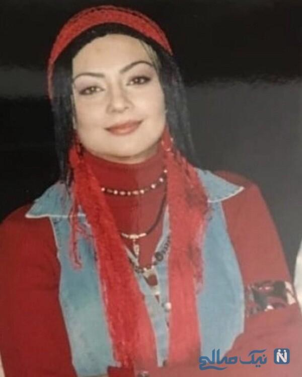 خانم بازیگر قبل از لاغری