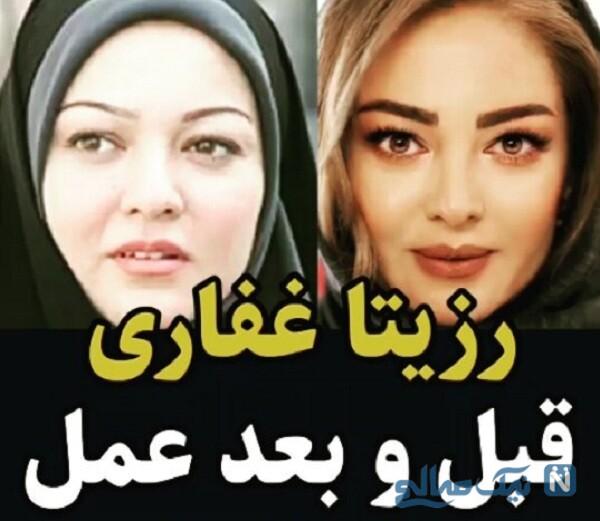 خانم بازیگر قبل و بعد از عمل زیبایی