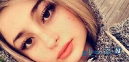 لایو نیکا فرقانی بازیگر پایتخت در مورد جراحی زیبایی صورتش