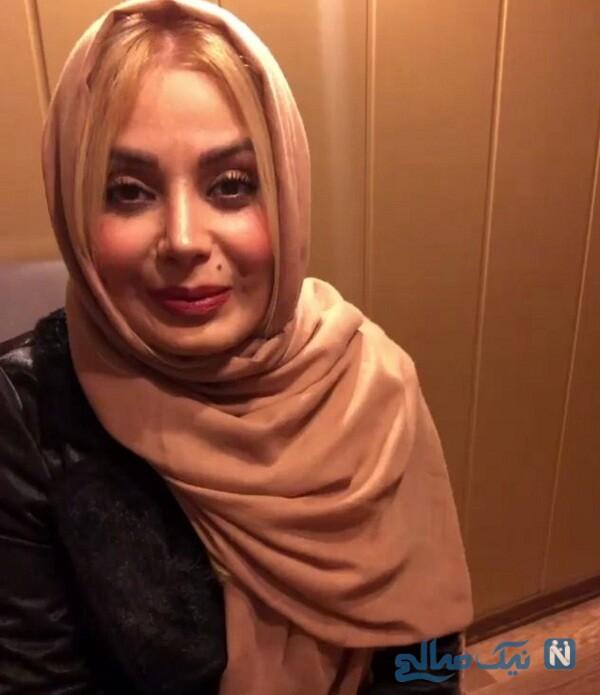 چهره ی جدید صبا راد بعد از مهاجرت به ترکیه