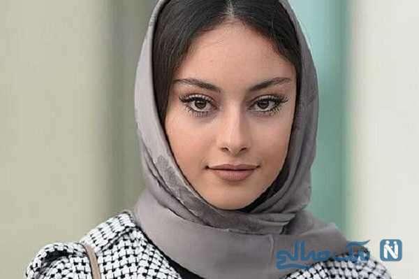 تغییر چهره ترلان پروانه بازیگر جوان بعد از پروتز لب هایش