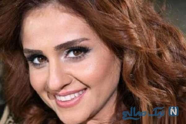 تغییر چهره گونل دختر خواننده ایی که ابراهیم تاتلیس کشف کرد