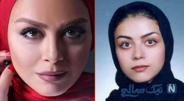 تغییر چهره شبنم فرشادجو در طی 22 سال