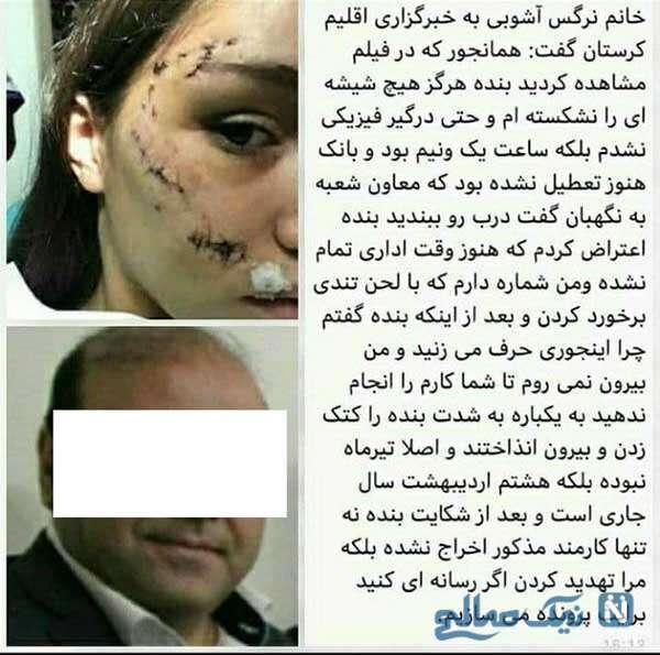 زن کتک خورده