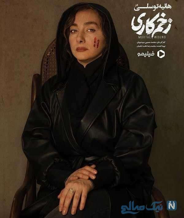 هانیه توسلی در زخم کاری