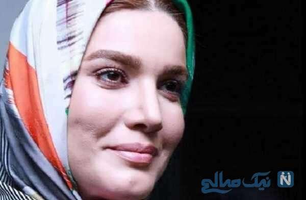 تغییر چهره متین ستوده تازه عروس سینمای ایران بعد از ازدواج