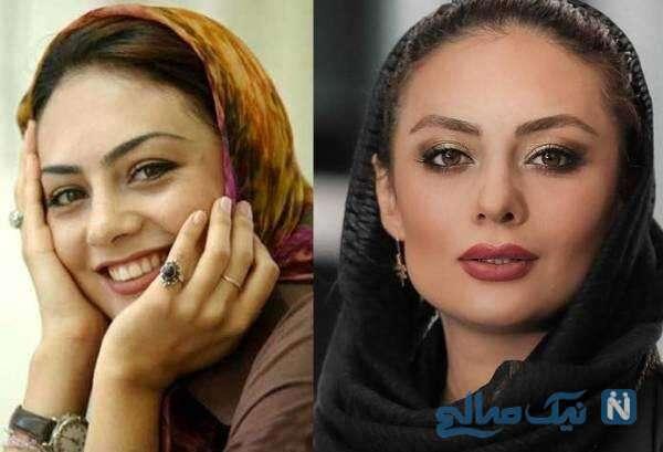 تغییر چهره بازیگر معروف زن ایرانی با جراحی بینی
