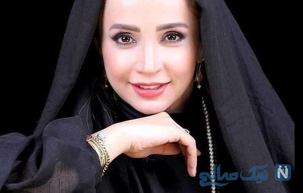 ۳ بازیگر معروف زن ایرانی که با جراحی بینی خیلی تغییر کردن