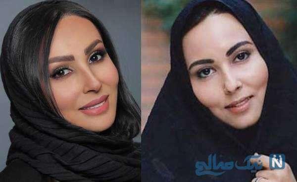 پرستو صالحی قبل و بعد از جراحی بینی