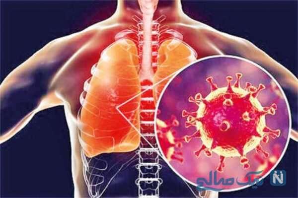 اثرات کرونا بر روی ریه ها