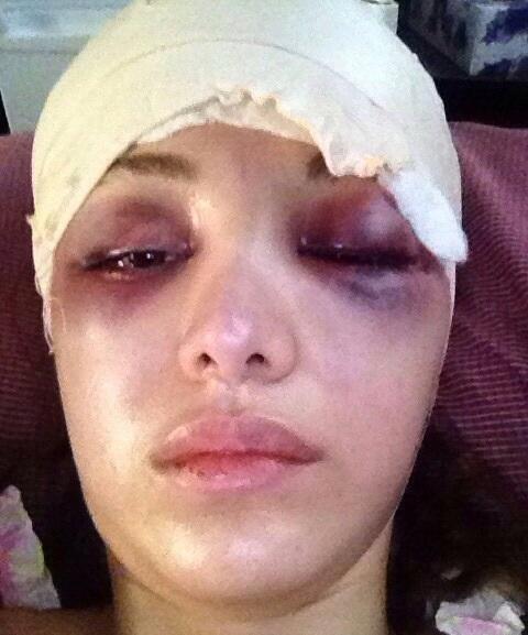بازیگر زن سینما پس از تصادف + عکس