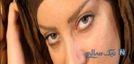 شراره رخام بازیگر ایرانی تغییر چهره داد!