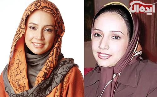 عکس های جدید بازیگران ایرانی قبل و بعد از عمل