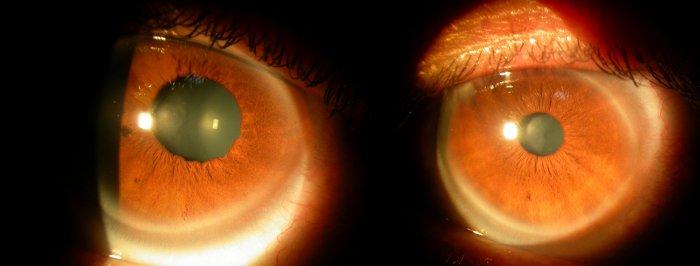 این 7 بیماری را از چشمتان تشخیص دهید