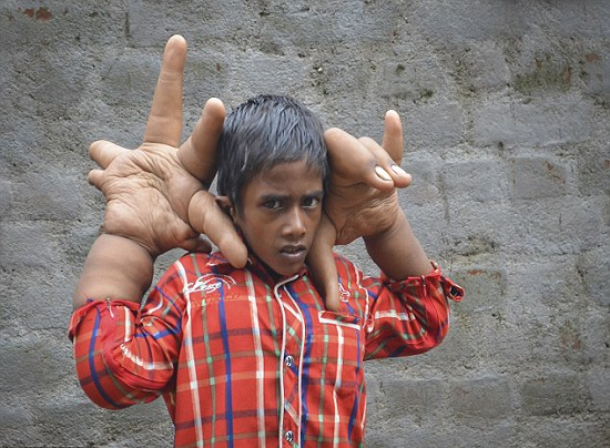 بزرگترین دست های جهان