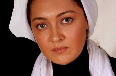 کدام بازیگران ایرانی چه جراحی زیبایی انجام داده اند؟!