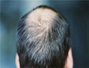 اصلیترین عامل ریزش مو