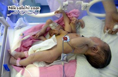 تولد نوزادی با هشت دست و پا