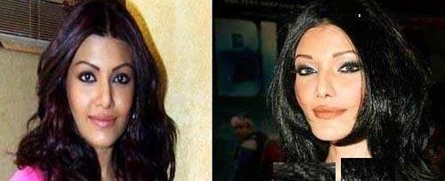 ستاره های بالیوودی قبل و بعد از عمل زیبایی