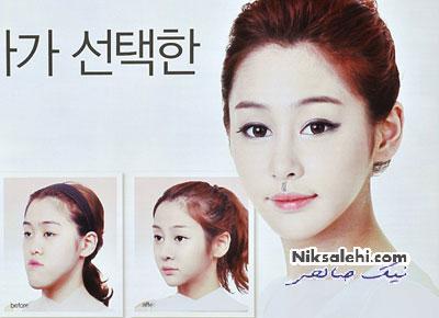 جدیدترین جراحی زیبایی زنانه و دردسرهای آن