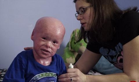 تصاویری دلخراش از پسر بچه ای که هرروز باید پوستش کنده شود