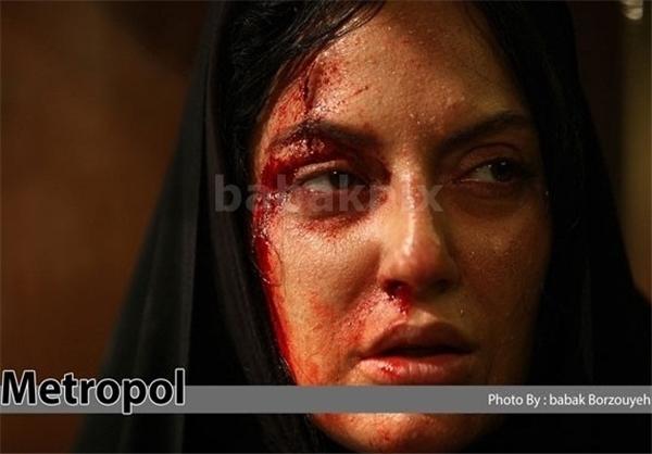 حمله وحشیانه 2 اراذل و اوباش به مهناز افشار صحت دارد!؟ تصاویر