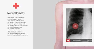 تبلتی پیشرفته که میتواند بیماریها را تشخیص دهد تصاویر