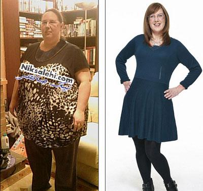 تغییر دیدنی یک خانم پس از 95 کیلو کاهش وزن
