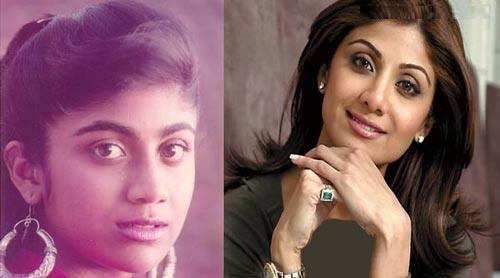 ستاره های بالیوودی قبل و بعد از عمل زیبایی!