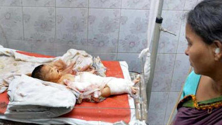 اتفاقی باور نکردنی برای نوزادی در بیمارستان