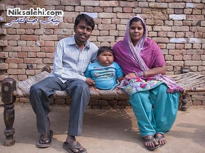 کودک 10 ماهه ای هم وزن یک دخترشش ساله