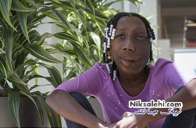 چهره دختر 15 ساله قبل و بعد از عمل تومور صورت