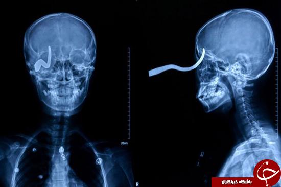 اشیا باورنکردنی جا مانده در بدن انسان! تصاویر