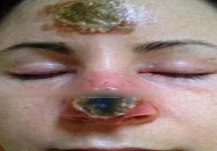 داروی گیاهی بینی زنی را از بین برد