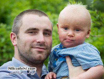 پسربچه ای که قادر به پلک زدن نیست