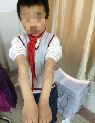 تنبیه کودک به خاطر ندانستن داستان پینوکیو