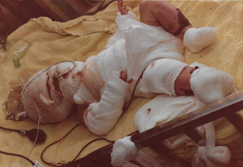 نجات معجزه آسای نوزاد پس از غوطهور شدن در روغن داغ