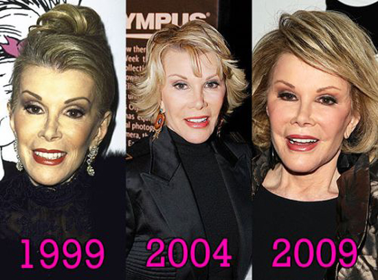 بازیگران هالیوودی قبل و بعد از عمل  تصاویر