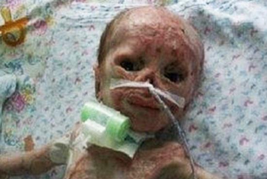 سوختن نوزاد 3 روزه بی گناه در دستگاه فتوتراپی بیمارستان