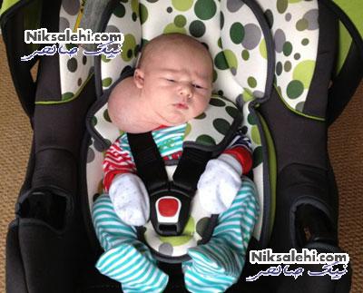 تولد نوزادی با گردن عجیب