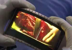 گوشی هوشمند انعطاف پذیری که به ساعت مچی تبدیل میشود تصاویر