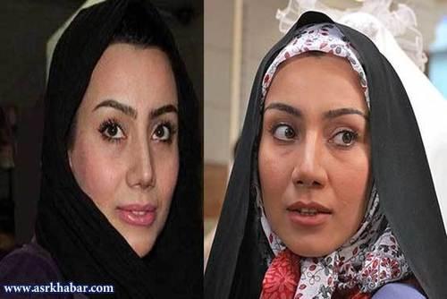عمل زیبایی ستاره های سینما ی ایران